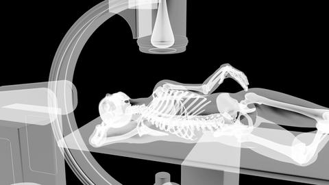 x-ray examination Stock Video Footage