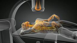 x-ray examination Stock Video Footage