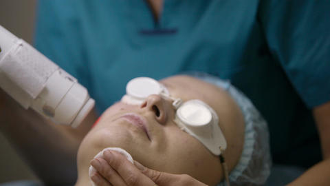 Doctor doing a fractional skin laser treatment Stock Video Footage