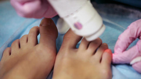 Podiatrist treating onychomycosis with a laser Stock Video Footage