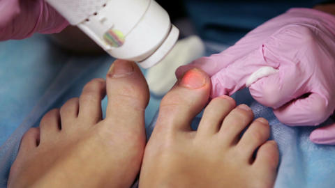 Podiatrist treating onychomycosis with a laser Footage
