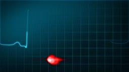 Cardiogram Of Heart ( EKG ) stock footage