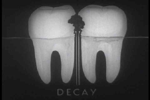 A 1939 dental hygiene film explains good practices Live Action