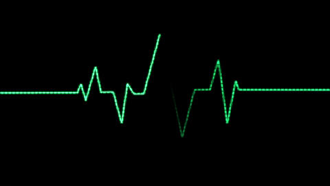 Heart Rate Monitor (60fps) stock footage