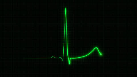 Cardiogram with grid 60 bpm Stock Video Footage