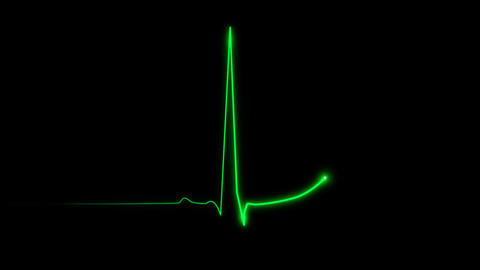 Cardiogram Stock Video Footage