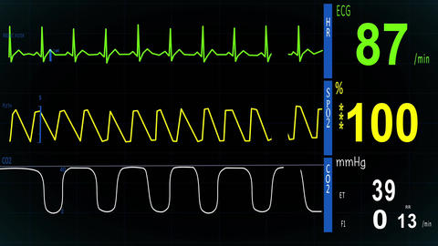 EKG, ECG Heart Monitor stock footage