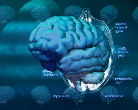brain layers Stock Video Footage