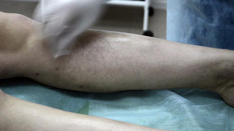 Medical injection patient leg. Sclerotherapy proce Footage