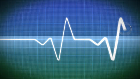 Monitor with electrocardiogram Stock Video Footage