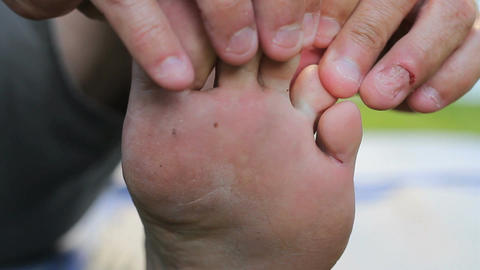 Man Discovers Itchy Athletes Foot Growth On Toes Footage