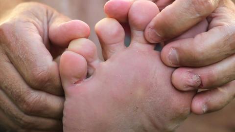 Man Examines His Athletes Foot Fungus Footage