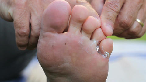 Treating Itchy Athletes Foot Problem With Special Footage