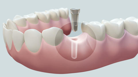 Dental Implant Bright stock footage