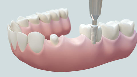Dental Bridge White Animation