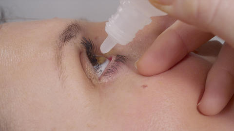CLOSE UP: Eye drops Footage