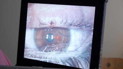 MACRO: Laser eye surgery, step 6 Footage