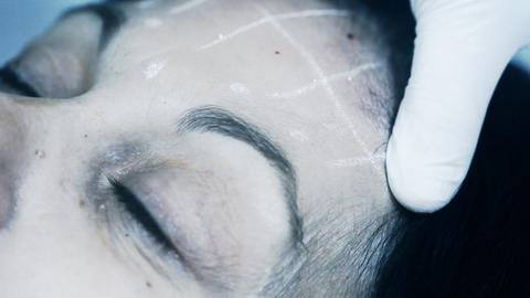 Cosmetic Treatment In A Clinic Woman Getting A Bot stock footage