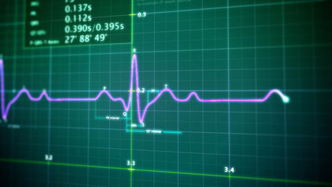 EKG monitor loop Stock Video Footage