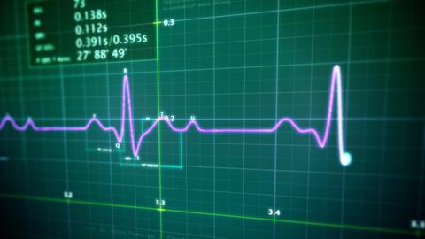EKG monitor loop Stock Video Footage