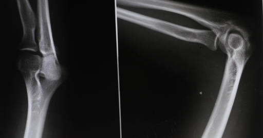 4k doctors study arm,leg joints X-ray film for... Stock Video Footage