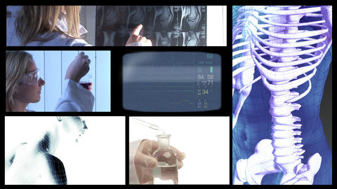 Medical Video Montage Stock Video Footage