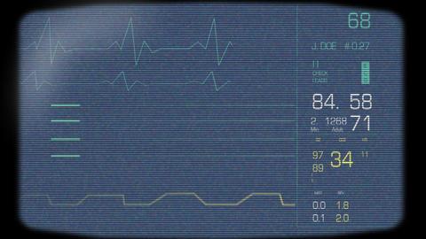 Full Heart Monitor Screen Footage
