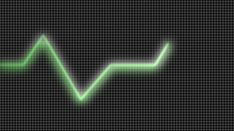 Stock Animation of a Heart Monitor Footage