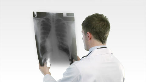Doctor looking at an xray Footage