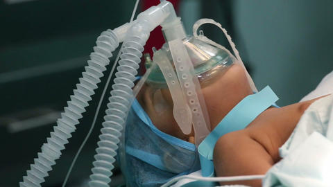 oxygenation on a unidentified child during a surge Stock Video Footage