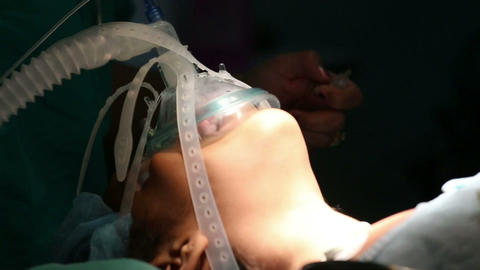 Unidentified girl breathing in the oxygen mask in Stock Video Footage