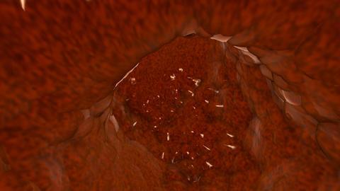 intestine Stock Video Footage