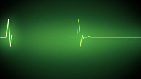 Green heart monitor line Animation