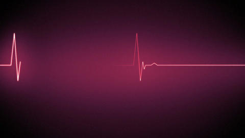 Pink heart monitor line Animation