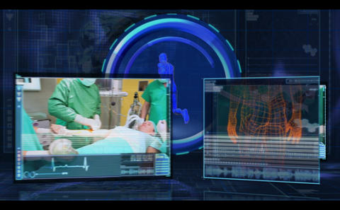 Digital medical interface showing various surgical Animation
