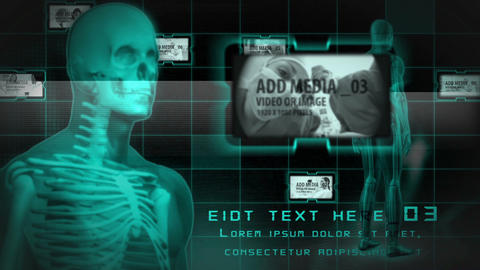 Full Body xray After Effects Template