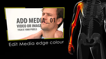Body Pain Zones After Effects Template