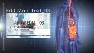 Medical Analysis: Stomach After Effects Template