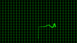 Cardiogram Cardiograph Oscilloscope Screen With Gr stock footage