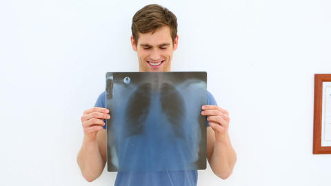Smiling patient showing his positive xray Footage