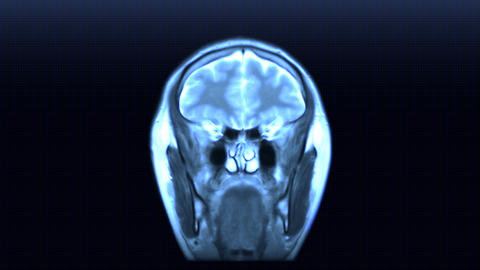 MRI scan Stock Video Footage