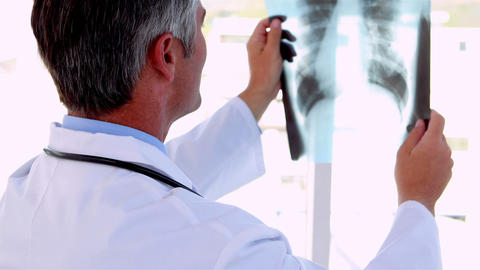 Doctor holding x-ray up to study it Footage