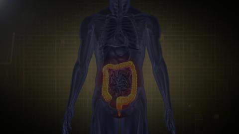 Medical Analysis: large intestine AE Version 4 - 1