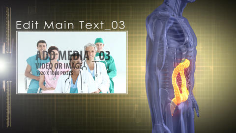 Medical Analysis: large intestine AE Version 4 After Effects Template