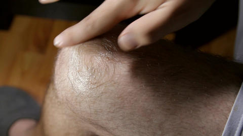 Man Knee Applying Cream, Knee Injury, Medical, Pai Footage