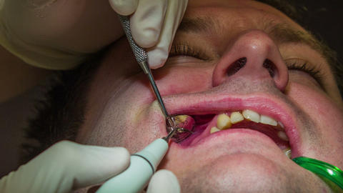 Dentist is washing out client's upper teeth Live Action