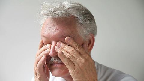 man rubs his tired eyes Footage