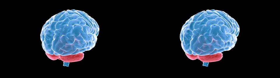brain xray sidebyside Animation