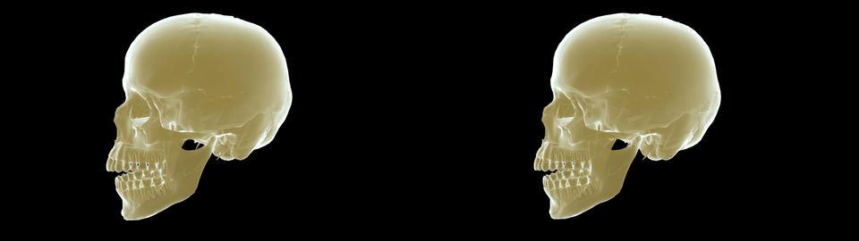 skull xray sidebyside Stock Video Footage