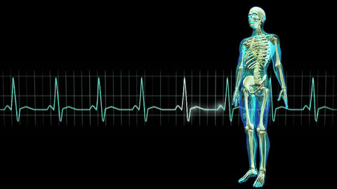 male lay figure and electrocardiogram Stock Video Footage